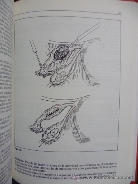 Libros de segunda mano: LIBRO DEL AÑO--OBSTETRICIA Y GINECOLOGIA 1993--SANED - Foto 3 - 44675096