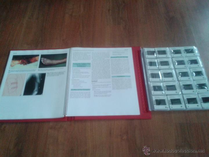Libros de segunda mano: Tecniques in Fracture Fixation. Editor: Timothy J. Bray, MD. 4 Volúmenes. Todos con diapositivas. - Foto 2 - 45244201