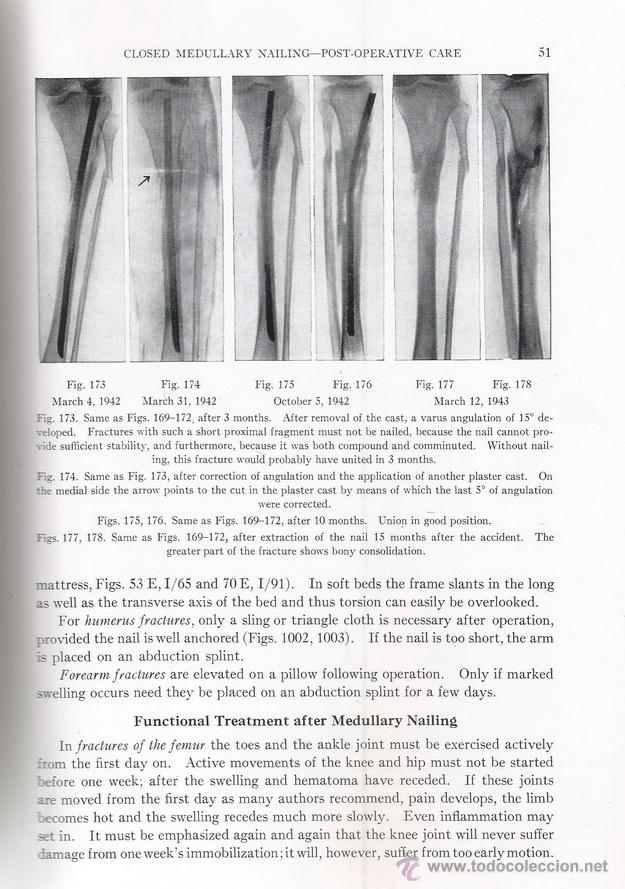 Libros de segunda mano: LORENZ BÖHLER. Medullary Nailing of Küntscher. RM69928. - Foto 5 - 50184915