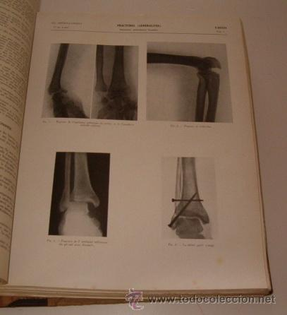 Libros de segunda mano: VV.AA. Encyclopédie Médico-Chirurgicale. Os. Articulations. Fractures. Luxations. RM70045. - Foto 4 - 50271750