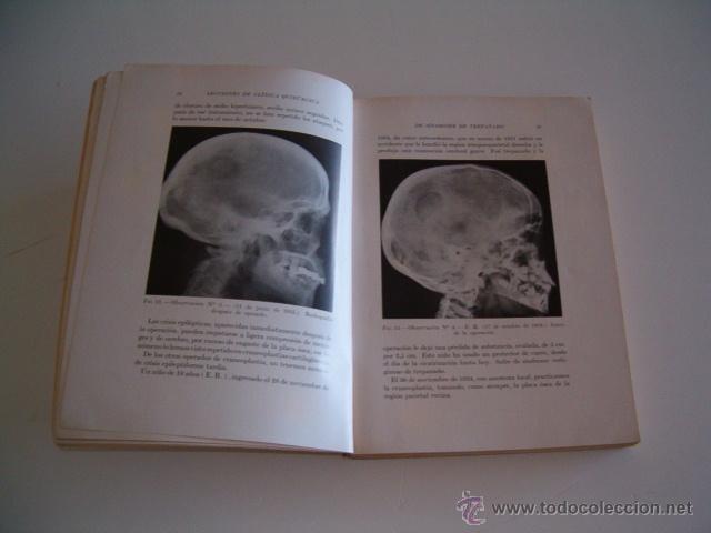 Libros de segunda mano: PEDRO CHUTRO. Lecciones de Clínica Quirúrgica I, II, III y IV. RM70158. - Foto 3 - 50303414