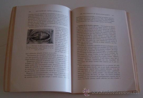 Libros de segunda mano: PEDRO CHUTRO. Lecciones de Clínica Quirúrgica I, II, III y IV. RM70158. - Foto 4 - 50303414
