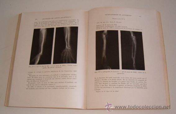 Libros de segunda mano: PEDRO CHUTRO. Lecciones de Clínica Quirúrgica I, II, III y IV. RM70158. - Foto 5 - 50303414