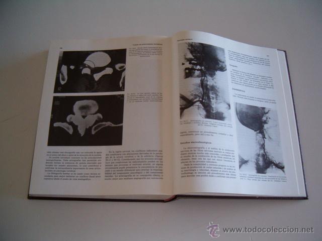 Libros de segunda mano: JESÚS MARQUÉS. Tratado de Enfermedades Reumáticas. Tomos I y II. DOS TOMOS. RM70301. - Foto 3 - 50491976