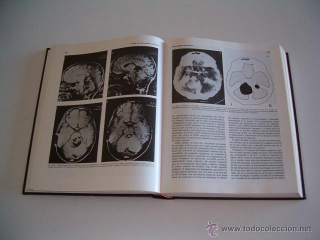 Libros de segunda mano: JESÚS MARQUÉS. Tratado de Enfermedades Reumáticas. Tomos I y II. DOS TOMOS. RM70301. - Foto 4 - 50491976