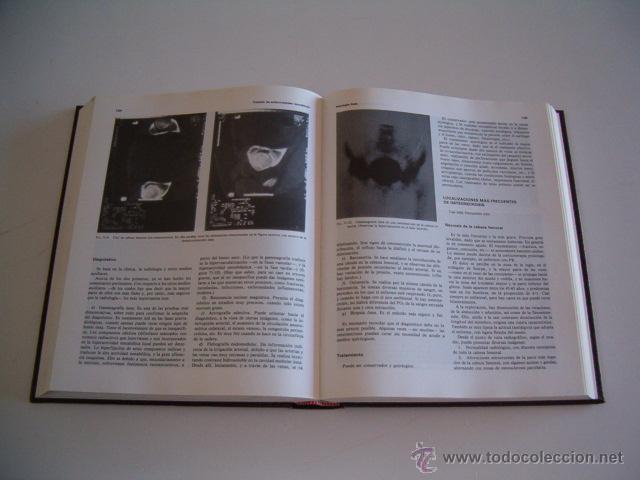 Libros de segunda mano: JESÚS MARQUÉS. Tratado de Enfermedades Reumáticas. Tomos I y II. DOS TOMOS. RM70301. - Foto 5 - 50491976