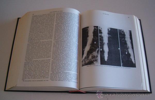 Libros de segunda mano: Textbook of Rheumatology. DOS TOMOS. RM73481. - Foto 4 - 54799805