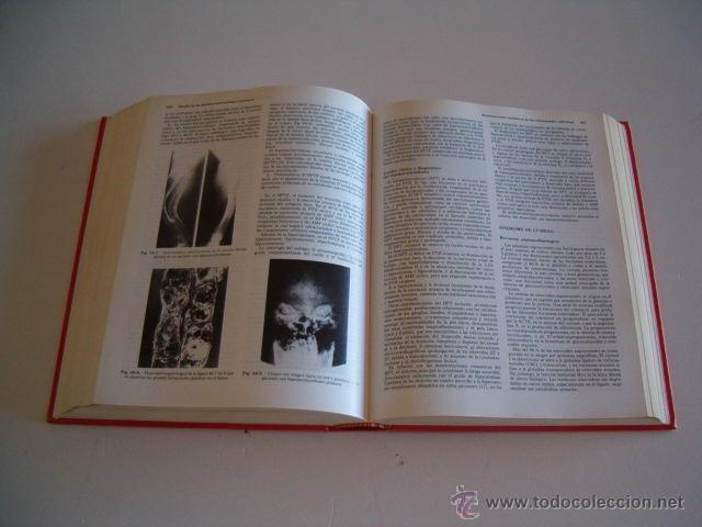 Libros de segunda mano: LUIS A. HERNÁNDEZ, Texto básico de reumatología clínica. RM73488. - Foto 4 - 54800202