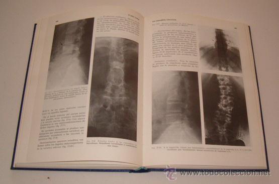 Libros de segunda mano: J. MARQUÉS. El dolor lumbar. RM73661. - Foto 2 - 54966171