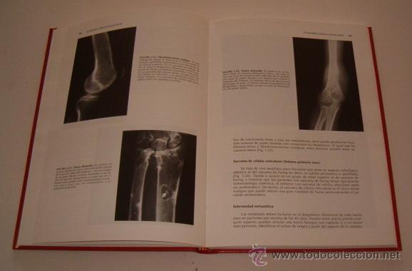 Libros de segunda mano: CLYDE A. HELMS. Fundamentos de Radiología del Esqueleto. RM73678. - Foto 2 - 54971720