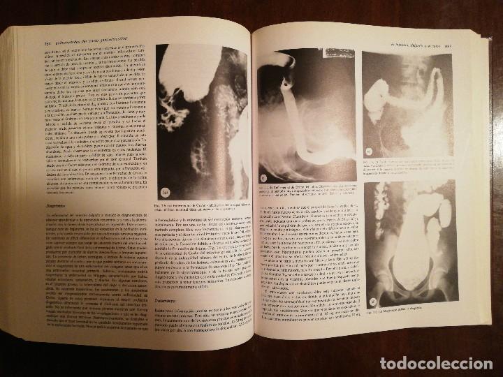 Libros de segunda mano: Libro Prince's, Medicina Interna - Volumen I - Sir Ronald Boley Scott - Espaxs ediciones - Foto 5 - 117331147