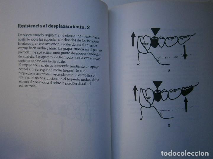 Libros de segunda mano: ATLAS DE APARATOLOGIA ORTODONCICA REMOVIBLE Gordon Dickson Albert Wheatly Salvat 1982 - Foto 13 - 117953503
