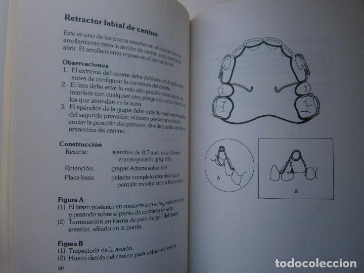 Libros de segunda mano: ATLAS DE APARATOLOGIA ORTODONCICA REMOVIBLE Gordon Dickson Albert Wheatly Salvat 1982 - Foto 16 - 117953503