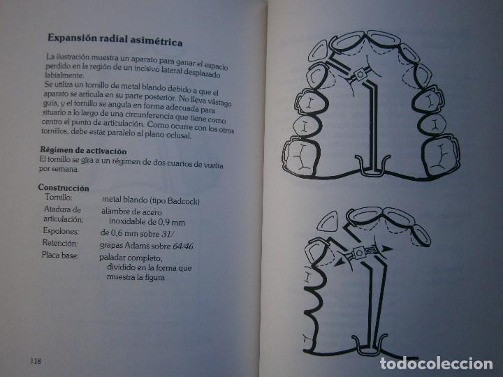 Libros de segunda mano: ATLAS DE APARATOLOGIA ORTODONCICA REMOVIBLE Gordon Dickson Albert Wheatly Salvat 1982 - Foto 17 - 117953503