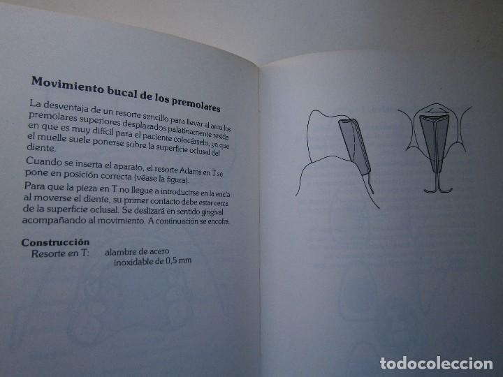 Libros de segunda mano: ATLAS DE APARATOLOGIA ORTODONCICA REMOVIBLE Gordon Dickson Albert Wheatly Salvat 1982 - Foto 19 - 117953503