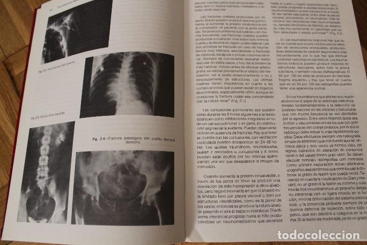 Libros de segunda mano: Libro TRAUMATISMOS AGUDOS, M.M. Sánchez Martín y muchos más, Universidad de Valladolid. - Foto 5 - 119051651