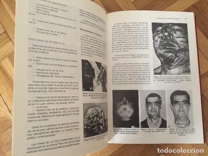Libros de segunda mano: Libro TRAUMATISMOS AGUDOS, M.M. Sánchez Martín y muchos más, Universidad de Valladolid. - Foto 8 - 119051651