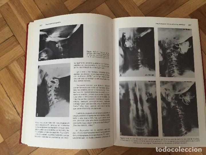 Libros de segunda mano: Libro TRAUMATISMOS AGUDOS, M.M. Sánchez Martín y muchos más, Universidad de Valladolid. - Foto 9 - 119051651