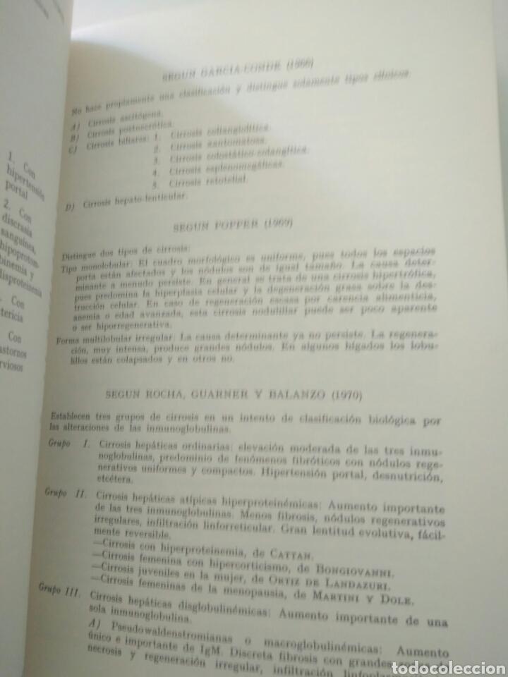 Libros de segunda mano: ASOCIACION ENRIQUE DE SALAMANCA,CIRROSIS HEPATICAS 28 ABRIL 1973 - Foto 3 - 127656787