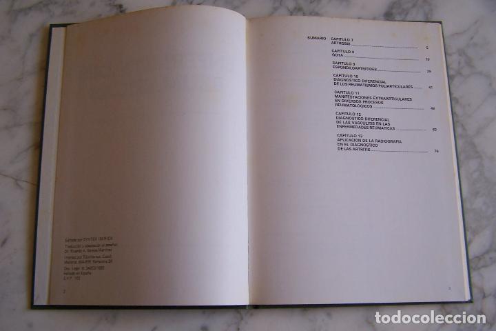 Libros de segunda mano: ENFERMEDADES REUMÁTICAS 2. SYNTEX IBÉRICA, 1980. - Foto 2 - 149876862