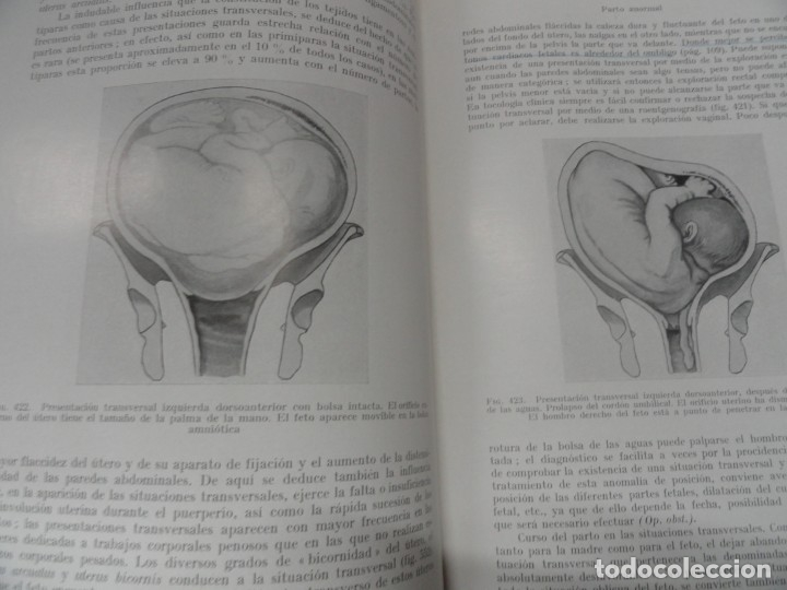 Libros de segunda mano: Tratado de Obstetricia - Dr Henrich Martius - Foto 4 - 150115750
