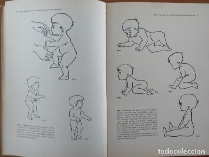 Libros de segunda mano: EL NIÑO ESPASTICO. PARALISIS CEREBRAL DIAGNOSTICO Y TRATAMIENTO. EDITORIAL ESPAXS BARCELONA 1969 - Foto 5 - 150944958