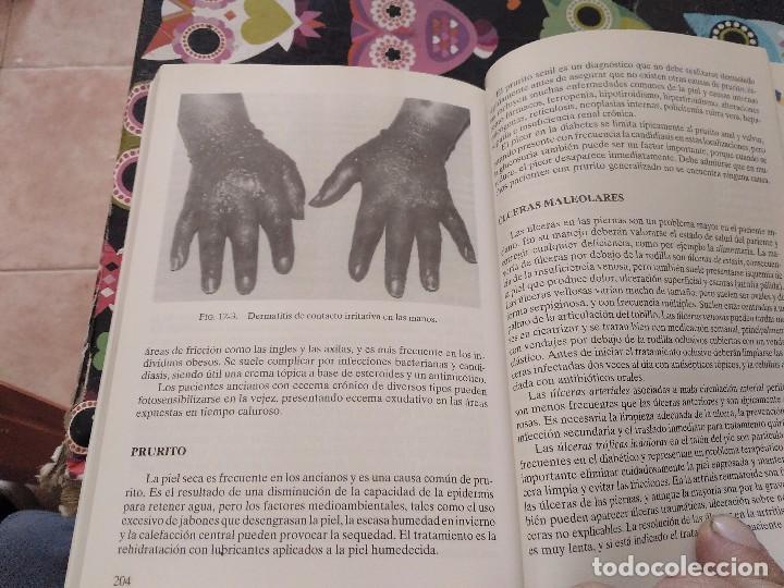 Libros de segunda mano: GERIATRIA EN ATENCION PRIMARIA A.NORMAN EXTON SMITH MARC E. WEKSLER 1ª EDICION 1999 ED. MEDICA - Foto 29 - 158263066