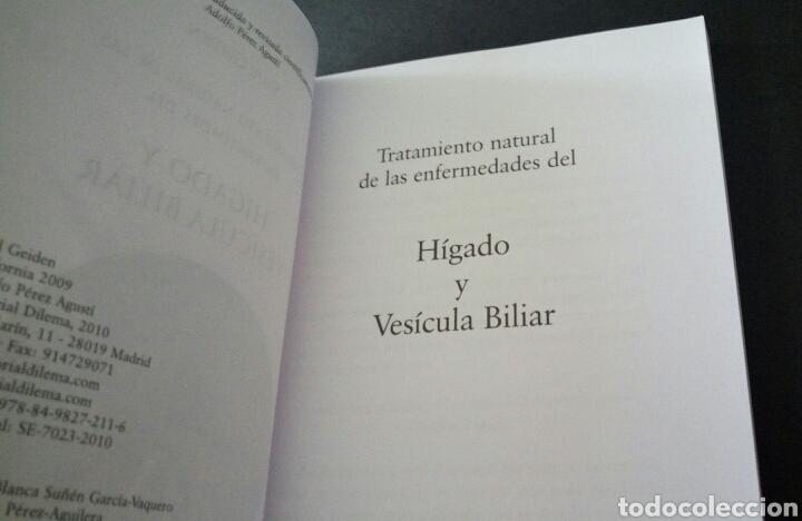 Libros de segunda mano: CTC - TRATAMIENTO NATURAL DE LAS ENFERMEDADES DEL HIGADO Y LA VESICULA BILIAR - GEIDEN - DILEMA - Foto 6 - 158617334