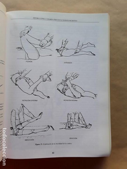 Libros de segunda mano: Manual de enfermedades reumaticas de la sociedad española de reumatología - Foto 3 - 166682410