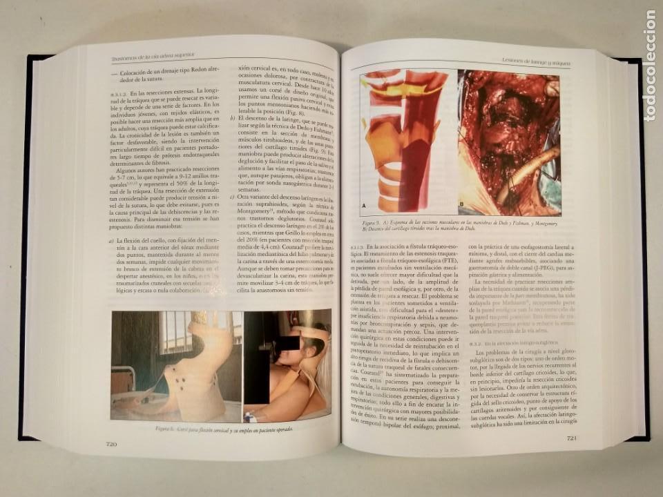 Libros de segunda mano: MEDICINA RESPIRATORIA. En su estuche. Incluye CD-Rom. VV.AA. 2º ed. Actualizada. ISBN 8478854010. - Foto 3 - 167778208