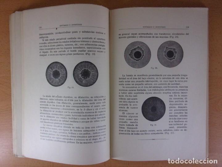 Libros de segunda mano: EL DIAGNÓSTICO POR EL IRIS / J. ÁNGEL VIDAURRÁZAGA / 1923 - Foto 2 - 171649063