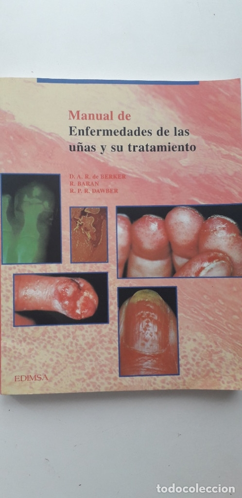 Manual De Enfermedades De Las Uñas Y Su Tratami Sold