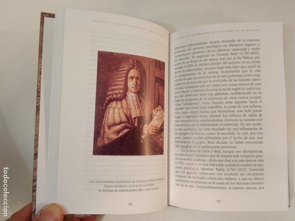 Libros de segunda mano: TABACO Y ENFERMEDAD RESPIRATORIA. Estudio histórico, relatos y ... VV.AA. ISBN 8488865813. - Foto 2 - 178147002
