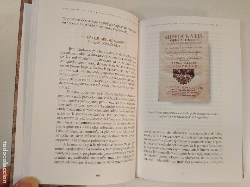 Libros de segunda mano: TABACO Y ENFERMEDAD RESPIRATORIA. Estudio histórico, relatos y ... VV.AA. ISBN 8488865813. - Foto 3 - 178360176