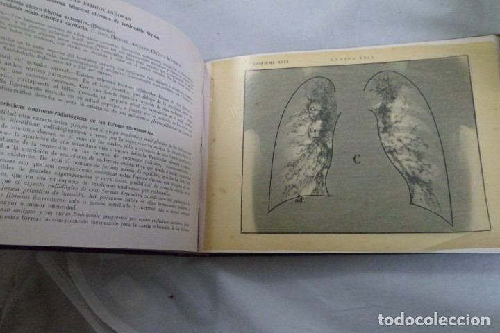 Libros de segunda mano: ATLAS DE RADIOLOGÍA CLÍNICA. DR. A. AMELL-SANS I APARATO DEL APARATO RESPIRATORIO INTRA-TORÁCICO - Foto 3 - 182483263