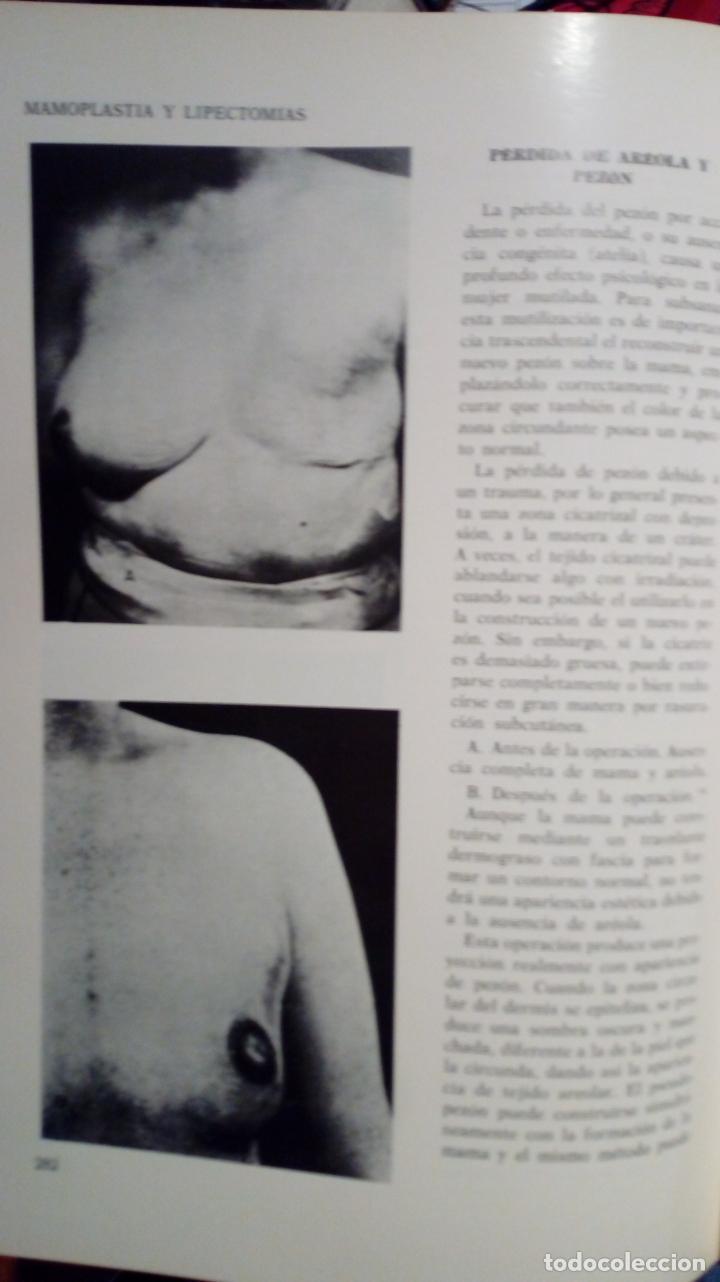 Libros de segunda mano: ATLAS DE CIRUGÍA PLÁSTICA. Morton Irwin Berson. ( Médicina estética ) - Foto 9 - 195507381