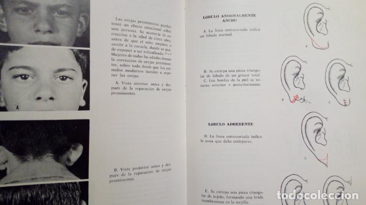 Libros de segunda mano: ATLAS DE CIRUGÍA PLÁSTICA. Morton Irwin Berson. ( Médicina estética ) - Foto 10 - 195507381