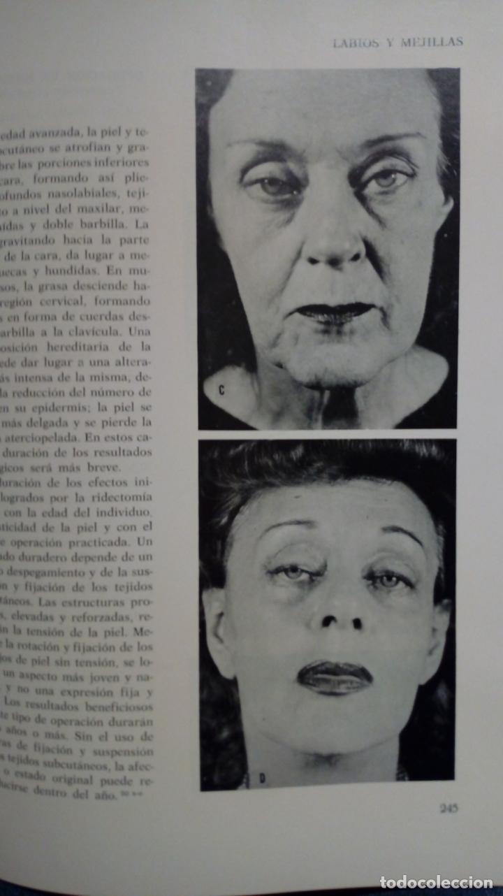 Libros de segunda mano: ATLAS DE CIRUGÍA PLÁSTICA. Morton Irwin Berson. ( Médicina estética ) - Foto 11 - 195507381
