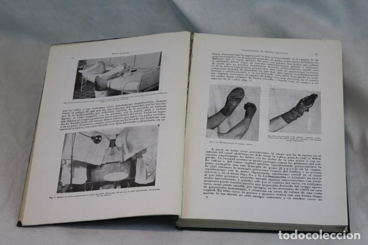 Libros de segunda mano: Tratado de Obstetricia operatoria,Winter-Naujoks,Editorial de acta ginecologica,1955 - Foto 3 - 208921971