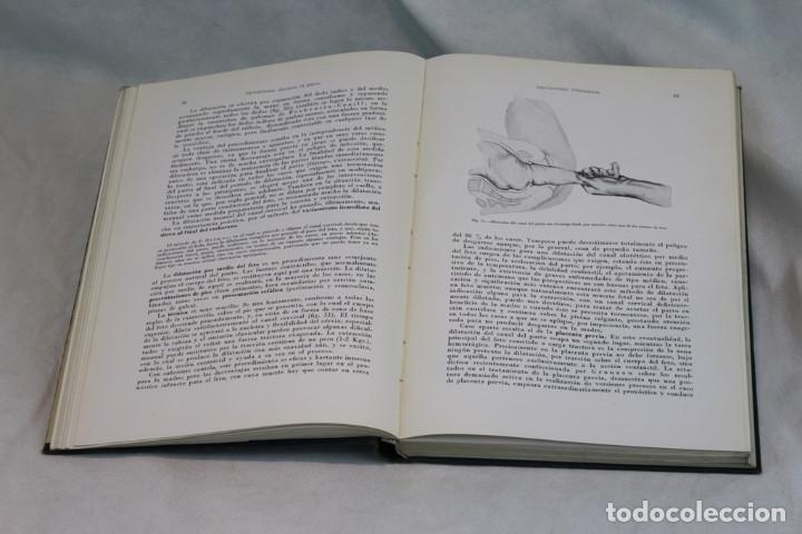 Libros de segunda mano: Tratado de Obstetricia operatoria,Winter-Naujoks,Editorial de acta ginecologica,1955 - Foto 4 - 208921971