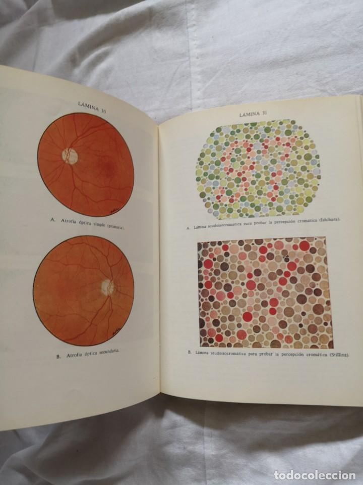 Libros de segunda mano: MANUAL DE LAS ENFERMEDADES DE LOS OJOS MAY JAMES H. ALLEN - Foto 3 - 213768152