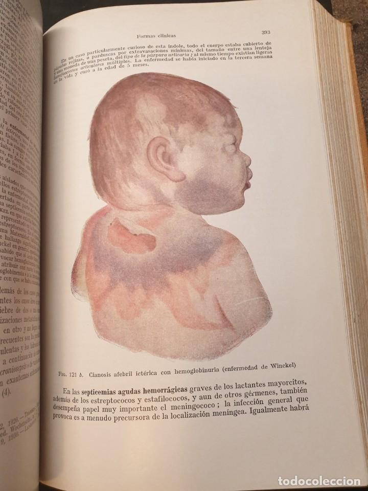 Libros de segunda mano: Tratado de las enfermedades del lactante - 3ª EDICION - 1941. 25 cm. XV, 919 p - Foto 14 - 215870331