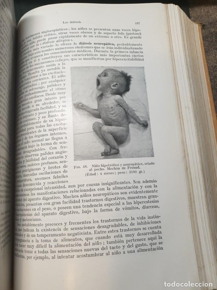Libros de segunda mano: Tratado de las enfermedades del lactante - 3ª EDICION - 1941. 25 cm. XV, 919 p - Foto 15 - 215870331