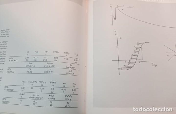 Libros de segunda mano: 4 ATLAS MEDICOS - Foto 6 - 219438315
