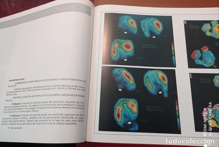 Libros de segunda mano: 4 ATLAS MEDICOS - Foto 8 - 219438315
