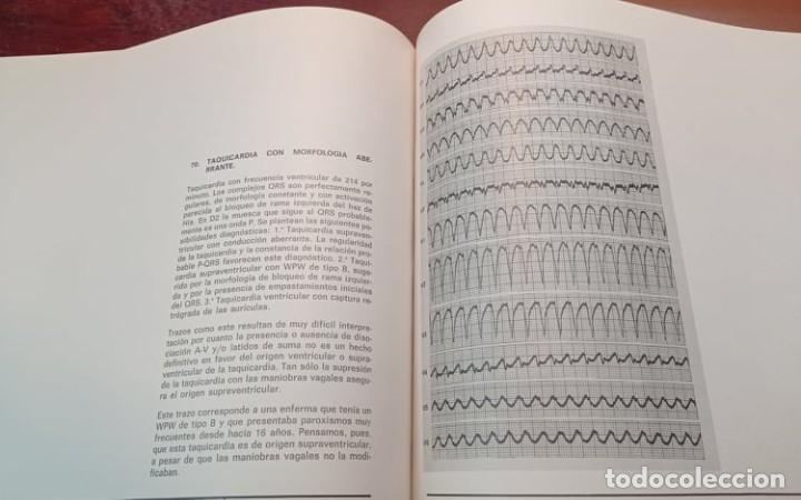 Libros de segunda mano: 4 ATLAS MEDICOS - Foto 9 - 219438315