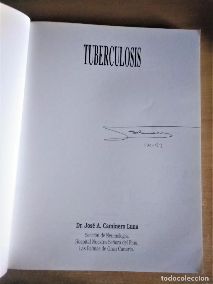 Libros de segunda mano: TUBERCULOSIS, JOSÉ A. CAMINERO LUNA - Foto 2 - 222704616