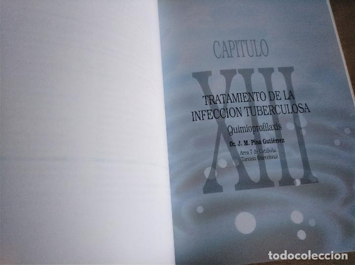 Libros de segunda mano: TUBERCULOSIS, JOSÉ A. CAMINERO LUNA - Foto 8 - 222704616