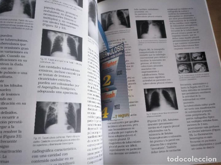 Libros de segunda mano: TUBERCULOSIS, JOSÉ A. CAMINERO LUNA - Foto 9 - 222704616
