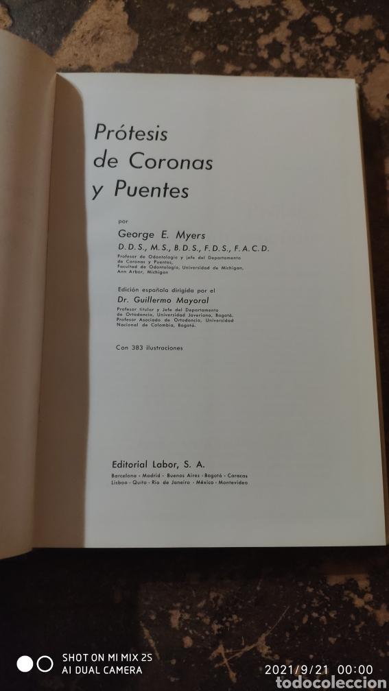 Libros de segunda mano: PRÓTESIS DE CORONAS Y PUENTES (GEORGE E. MYERS) (ED. LABOR) - Foto 2 - 288584778